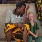 Albino's in Tanzania – slachtoffers van medicijnmannen